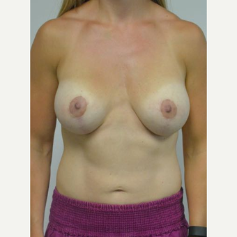 25-34 year old woman treated with Breast Lift with Implants after 3219885