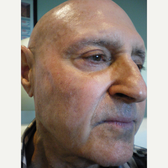 65-74 year old man treated with Sculptra Dysport after 3076725