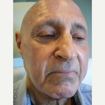 65-74 year old man treated with Sculptra Dysport before 3076725