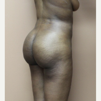 25-34 year old woman treated with Brazilian Butt Lift after 3338631