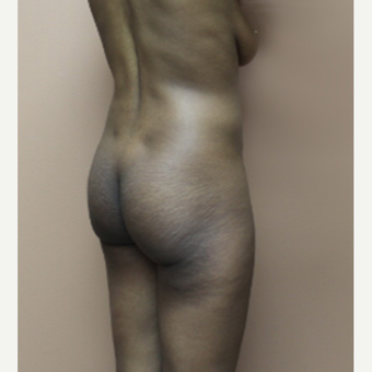 25-34 year old woman treated with Brazilian Butt Lift before 3338631