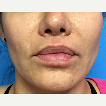 35-44 year old woman treated with Lip Lift after 3213831