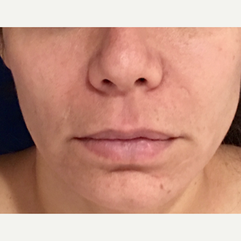 35-44 year old woman treated with Lip Lift before 3213831