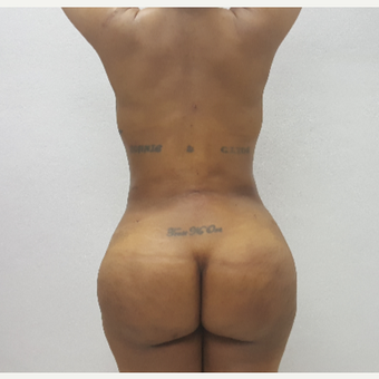 35-44 year old woman treated with Brazilian Butt Lift after 2749966