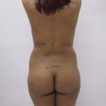 35-44 year old woman treated with Brazilian Butt Lift before 2749966
