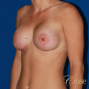 Anchor Breast Lift with Implants after 3502154