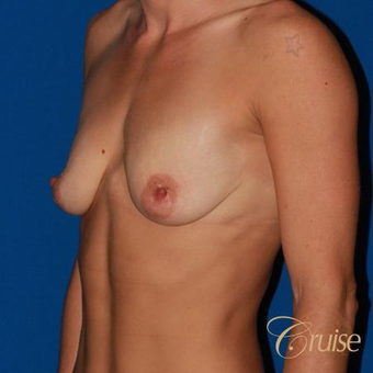 Anchor Breast Lift with Implants before 3502154