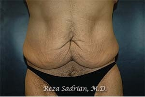 Tummy Tuck before 1156722