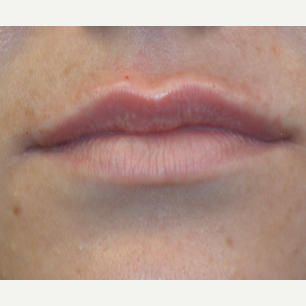 25-34 year old woman treated with Restylane in her upper lip after 3445240