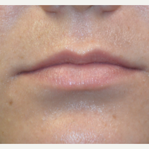 25-34 year old woman treated with Restylane in her upper lip before 3445240