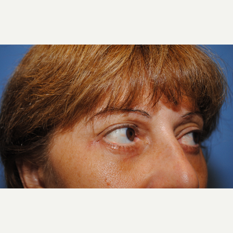 35-44 year old woman treated with Eye Bags Treatment after 3763442