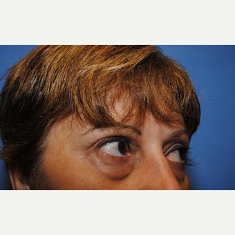 35-44 year old woman treated with Eye Bags Treatment before 3763442