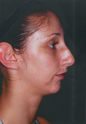 Chin Augmentation before 911589