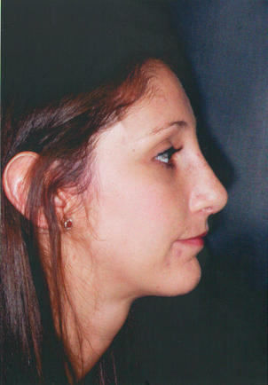 Chin Augmentation after 911589