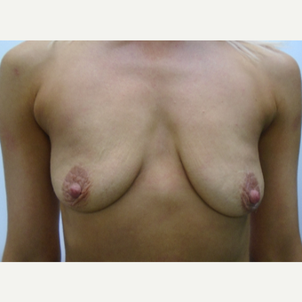 35-44 year old woman treated with Breast Implants before 3832923
