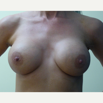 35-44 year old woman treated with Breast Implants after 3832923
