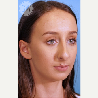 18-24 year old woman treated with Nose Surgery before 3473404
