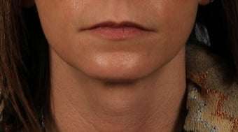 35-44 year old woman treated with Lip Implants before 3615557