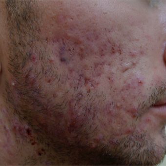 Scar prevention and acne treatments should be concurrent. before 3710528
