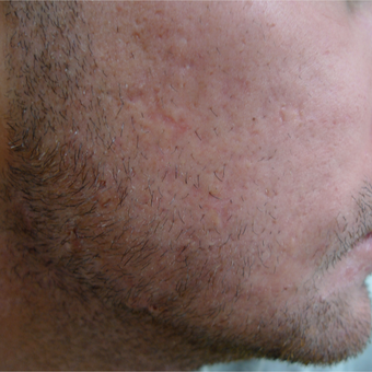 Scar prevention and acne treatments should be concurrent. after 3710528