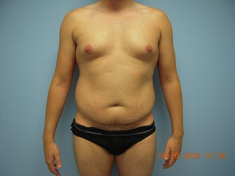 Liposuction before 521161