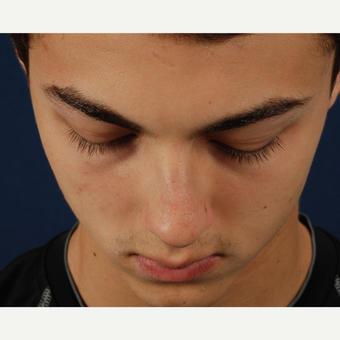 18-24 year old man treated with Rhinoplasty before 3164779