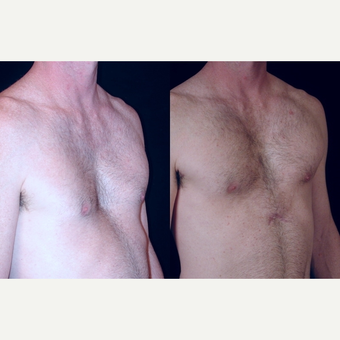 25-34 year old man treated with Pec Implants before 3659569