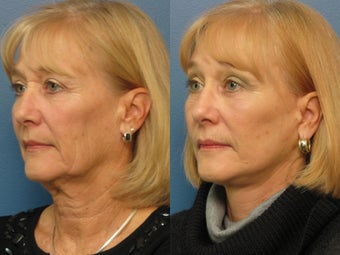 Brow Lift & Facelift 338483