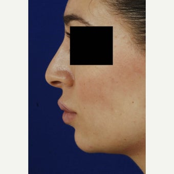 18-24 year old woman treated with Rhinoplasty