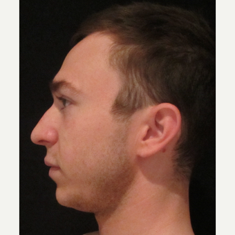 18-24 year old man treated with Chin Implant before 3840227