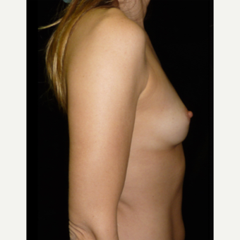 25-34 year old woman treated with Breast Augmentation before 3356167