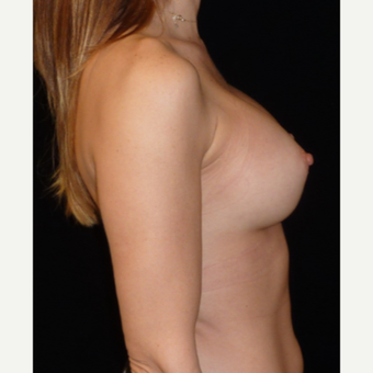 25-34 year old woman treated with Breast Augmentation after 3356167