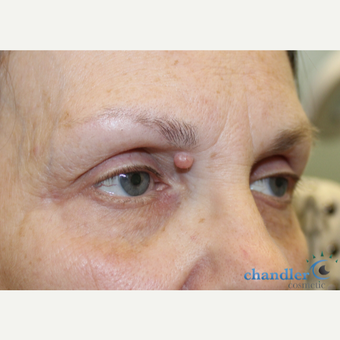 65-74 year old woman treated with Mole Removal before 3139945
