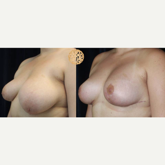 18-24 year old woman treated with Breast Lift with Implants after 3200906