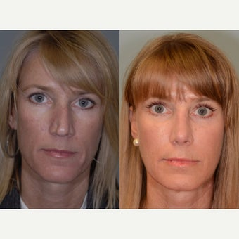 32 year old woman Revision Rhinoplasty before 2073465
