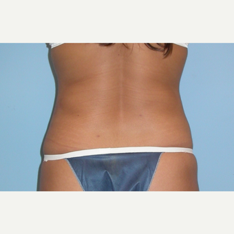 23 year old woman treated with Liposuction of her hips and flanks after 3086937