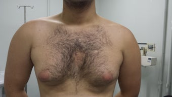 20 Years Old Male treated for Gynecomastia before 1397524
