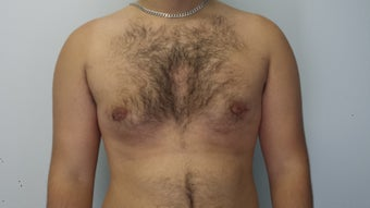 20 Years Old Male treated for Gynecomastia after 1397524