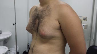 20 Years Old Male treated for Gynecomastia 1397524