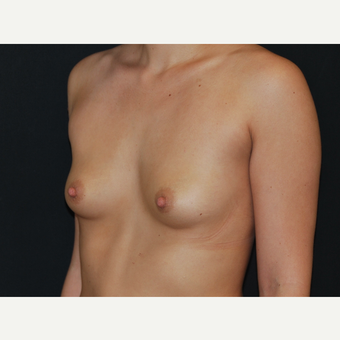 25-34 year old woman treated with Breast Implants before 3651107