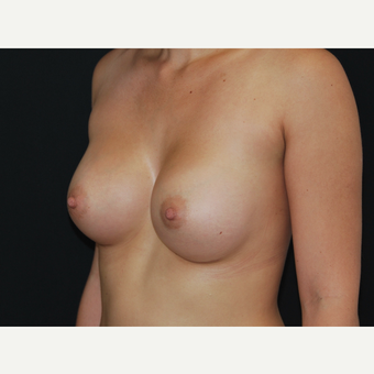 25-34 year old woman treated with Breast Implants after 3651107