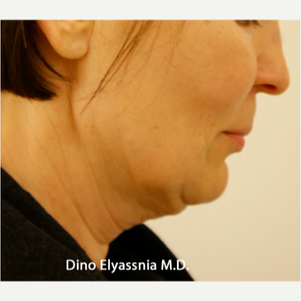 45-54 year old woman treated with Face Lift and Neck Lift before 1689021