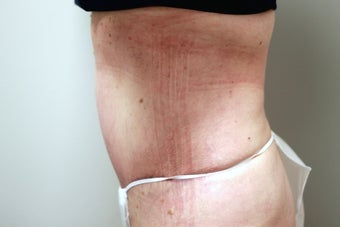 45-54 year old woman treated with Tummy Tuck 2364358