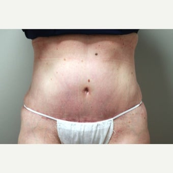 45-54 year old woman treated with Tummy Tuck after 2364358