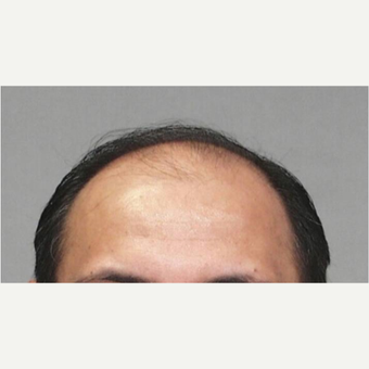 55-64 year old man treated with Hair Transplant before 3067482