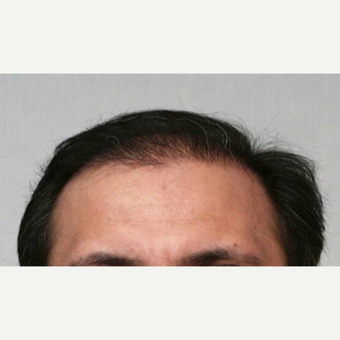 55-64 year old man treated with Hair Transplant after 3067482