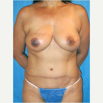 53 year old woman treated with DIEP flap Breast Reconstruction after 3724594