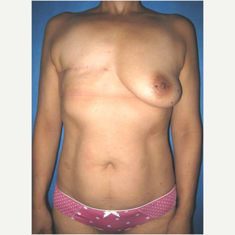 53 year old woman treated with DIEP flap Breast Reconstruction before 3724594