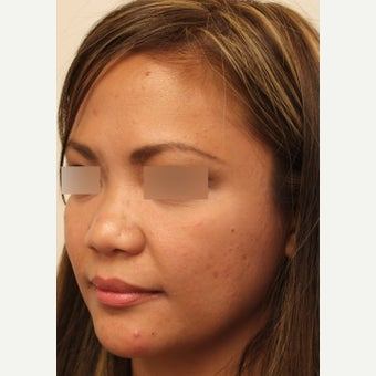 25-34 year old woman who underwent Asian Rhinoplasty surgery with alar base reduction