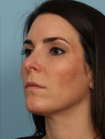 35-44 year old woman treated with Rhinoplasty after 2594553